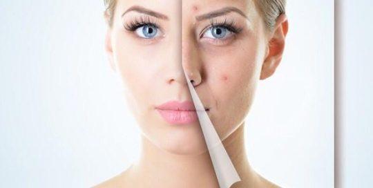 terapia anti acne