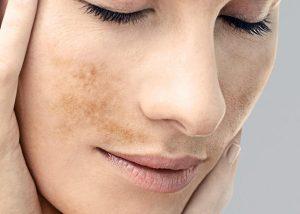 piel dañada sol